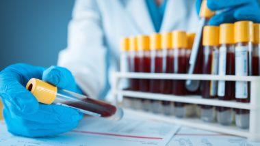 Medical Sample Collection: मैडिकल सैंपल कलेक्ट करने का व्यापार ऐसे करें शुरू, होगी मोटी इनकम